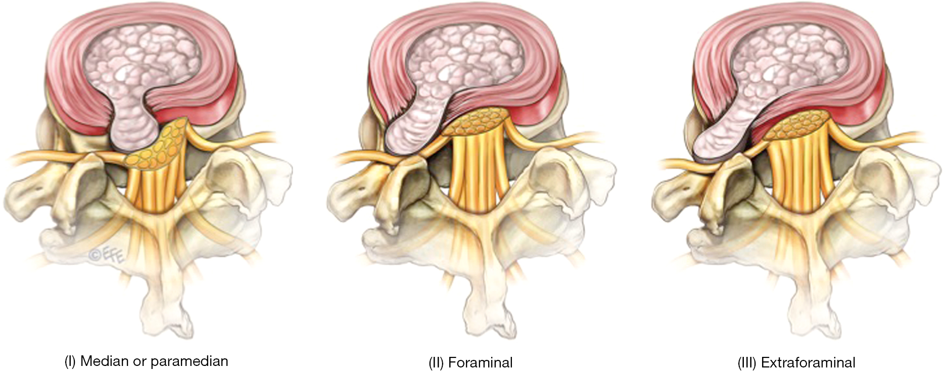 surgical treatment of far lateral lumbar disc herniation: a safe, Cephalic Vein