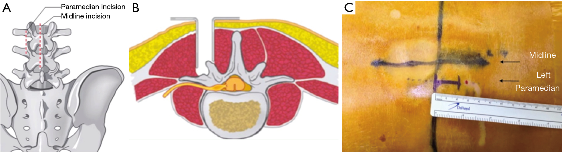 figure 2 a 2 cm paramedian incision is made lateral to the midline to access the herniation from outside the spinal canal