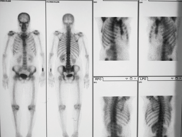 Primary leiomyosarcoma of the spine treated with total en