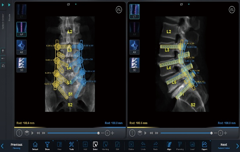 The use of robotics in minimally invasive spine surgery